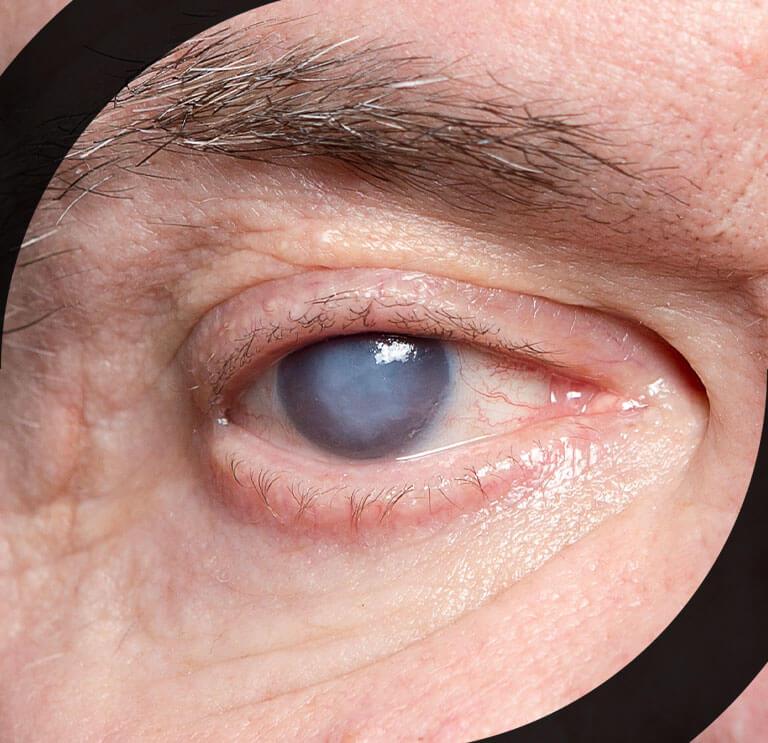 Imagem Cirurgia de Catarata